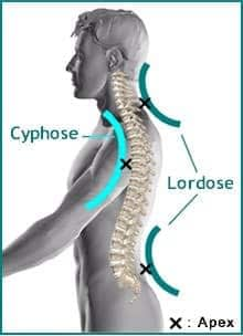 Hyperlordose lombaire exercices